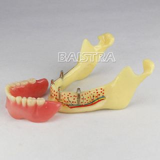 Dental teeth Implant model of the lower jaw for study and teach